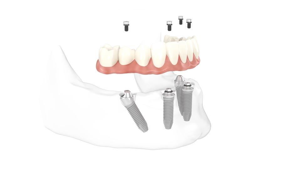 Befestigung des Provisoriums für Zahnersatz nach All-on-4
