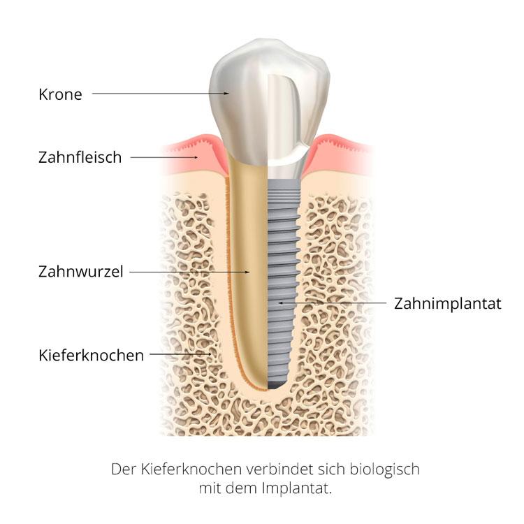 Zahnimplantate ersetzen die natürliche Zahnwurzel